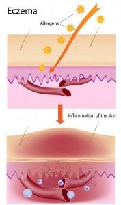 Imavita / Atopic Dermatitis