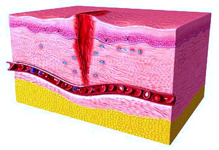 Wound healing preclinical model / Imavita