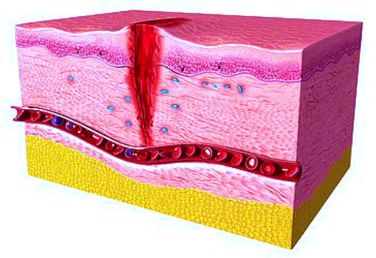 Wound healing preclinical model / Imavita