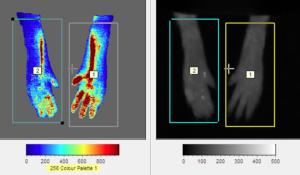 Laser Doppler Imaging rosacea Imavita